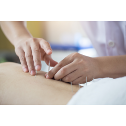 Acupuncture Home Service