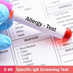 Allergy IgE Test (E66 items)